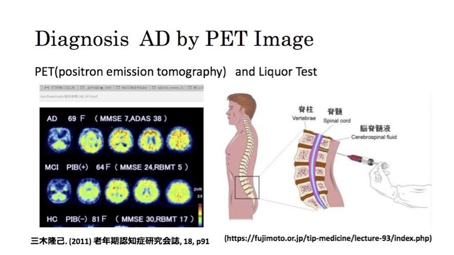 No.【033】アルツハイマー病の早期診断と治療
